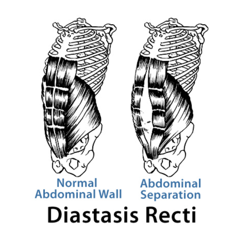 Diastasis Recti Graphic